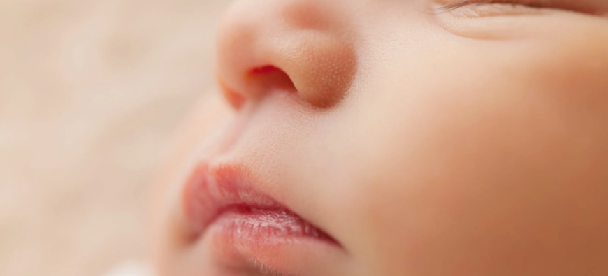 Insolite - Pour la première fois au monde, un bébé naît avec 3 pénis !